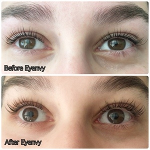 Before and after using eyenvy